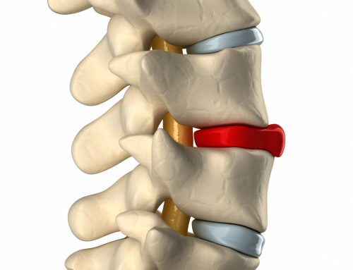 Are you looking for a Herniated Disc Doctor in NYC?