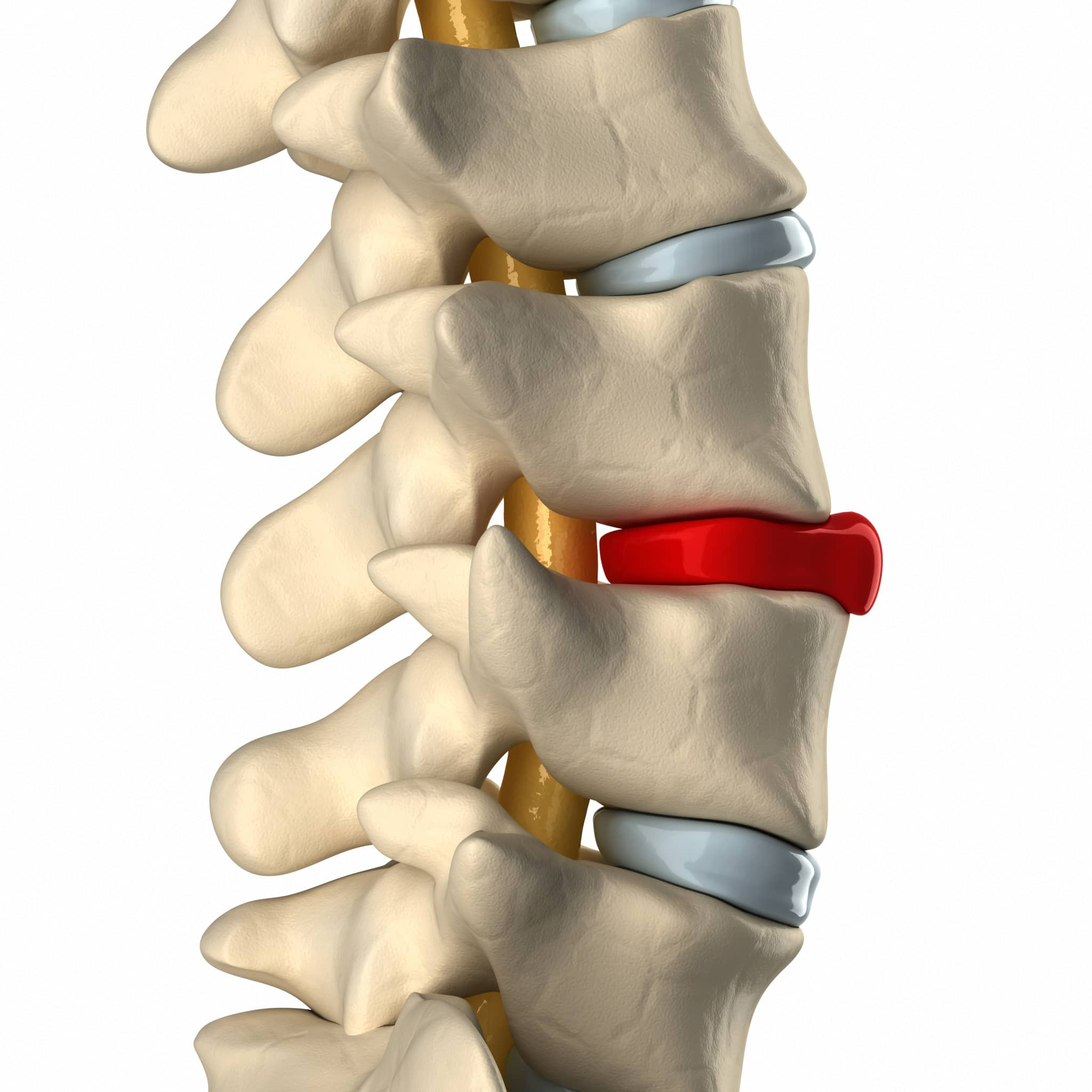 Causes and Treatments of Herniated Discs